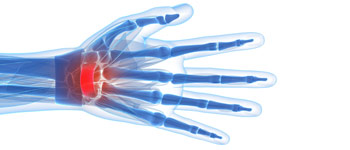 Carpal Tunnel Treatment Los Angeles